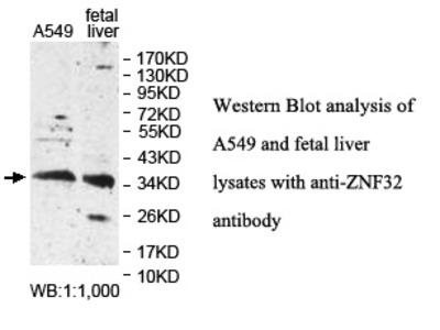 ZNF32 Antibody