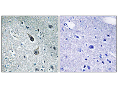 5-HT-2A Antibody
