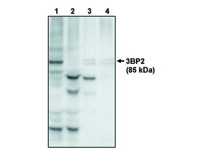 3BP2 (SH3 Binding Protein 2)