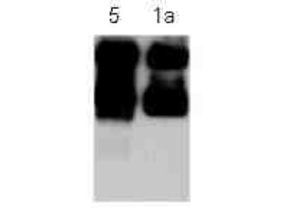 Metabotropic Glutamate Receptor 5/1a