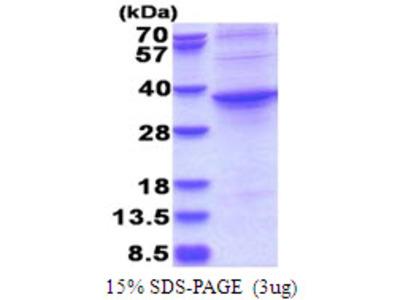 ASPHD1,96-390aa, Human, His tag, E Coli