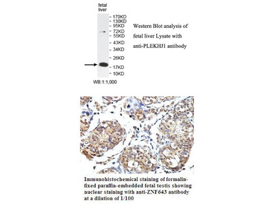 Anti-GNRPX - PLEKHJ1 Antibody