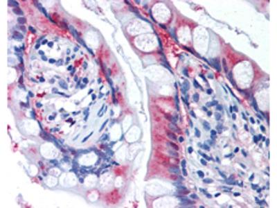 XCT, Affinity Purified Antibody, Rabbit