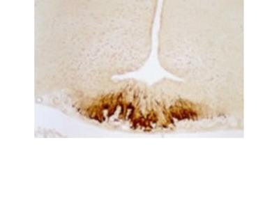 CRF (Corticotropin Releasing Factor), Antiserum, Rabbit