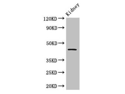 Rabbit anti-rat Cellular tumor antigen p53 polyclonal Antibody