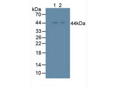 Polyclonal Antibody to Inhibitory Subunit Of NF Kappa B Epsilon (IkBe)