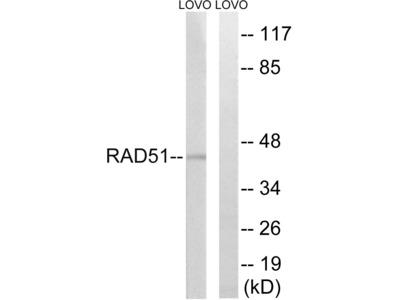 RAD51 (Ab-315) Antibody