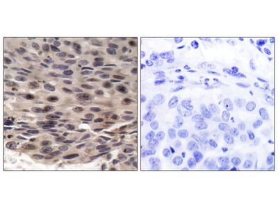 4E-BP1 (Phospho-Thr36) Antibody