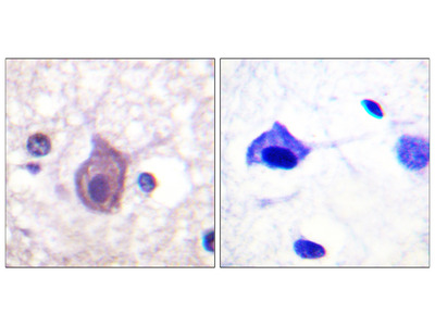 CD4 (Phospho-Ser433) Antibody