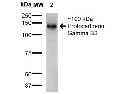 Protocadherin Gamma B2 Antibody: PE/ATTO 594