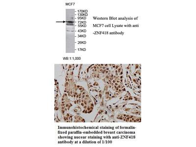 Anti-ZNF418 Antibody