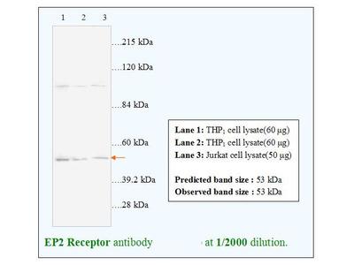 EP2 Receptor Antibody