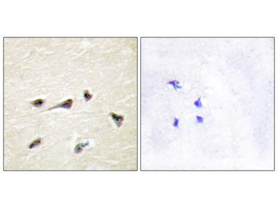 AKAP12 Antibody