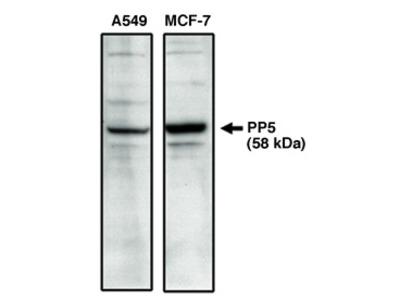 Protein Phosphatase 5 (C Terminal)