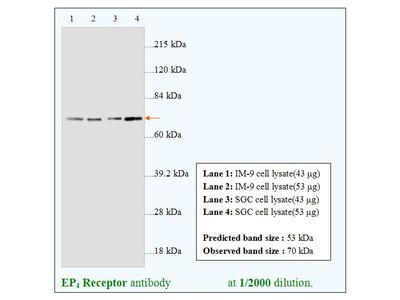 EP4 Receptor Antibody