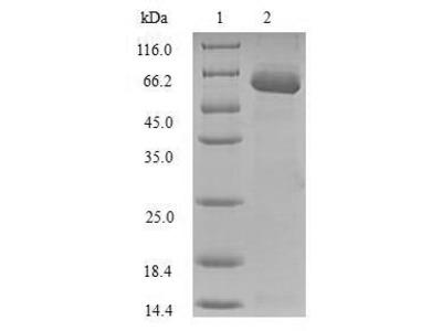 Recombinant Human Sulfotransferase 1A1 (SULT1A1),partial