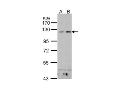 Integrin alpha X antibody