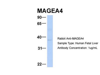 MAGEA4 antibody - C-terminal region (ARP54410_P050)