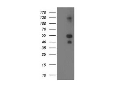 LMCD1 antibody