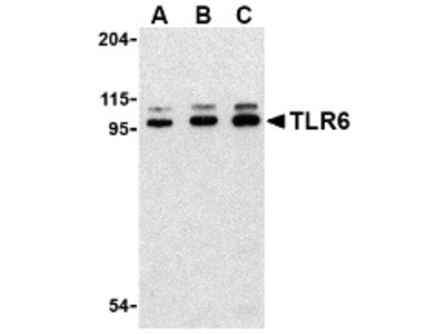 Toll-like receptor 6 (TLR6) (IN)