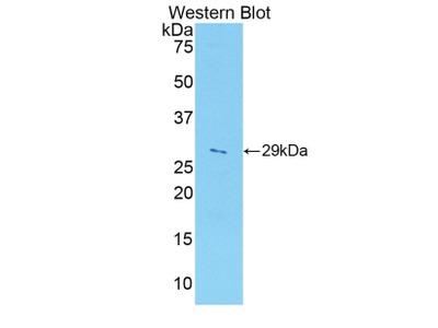 Polyclonal Antibody to A Disintegrin And Metalloprotease 5 (ADAM5)