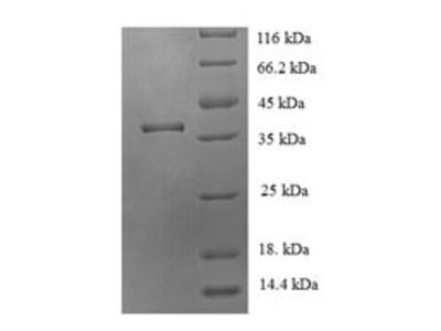 Recombinant Human JmjC domain-containing protein 7 (JMJD7)