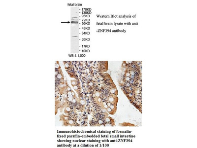 Anti-ZNF394 Antibody