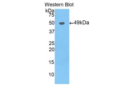 Polyclonal Antibody to Pregnane X Receptor (PXR)