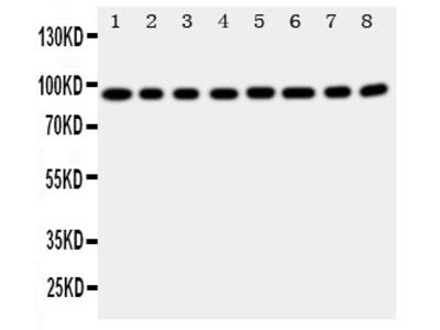 Anti-Factor VIII antibody