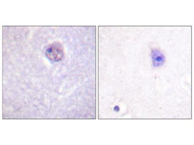SOX-9 (Phospho-Ser181) Antibody