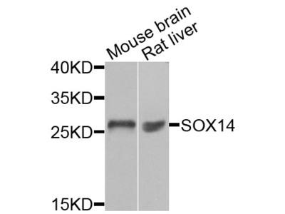 Anti-SOX14 antibody