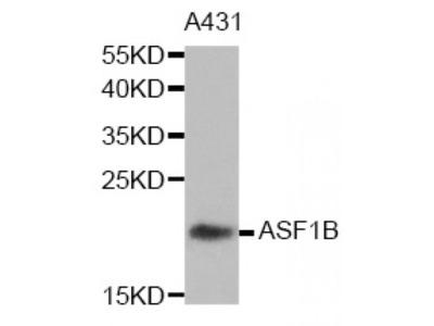Anti-ASF1B antibody