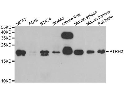 Anti-PTRH2 antibody (STJ28549)