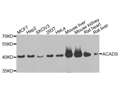 Anti-ACADS antibody