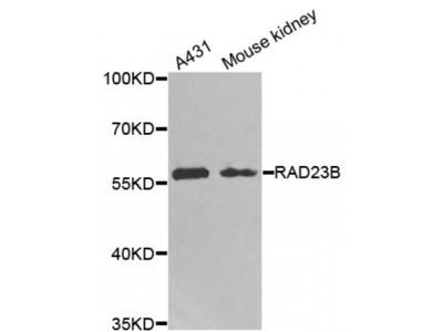 Anti-RAD23B antibody