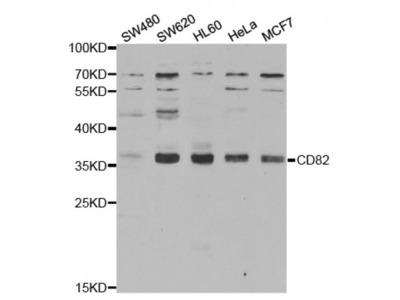 Anti-CD82 antibody