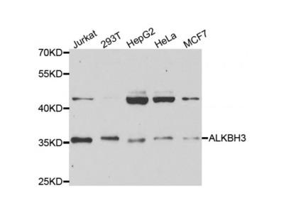 Anti-ALKBH3 antibody