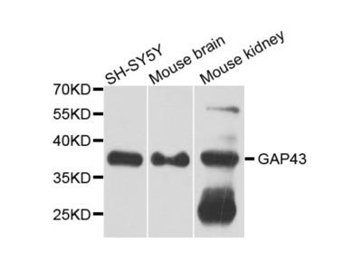 Anti-GAP43 antibody