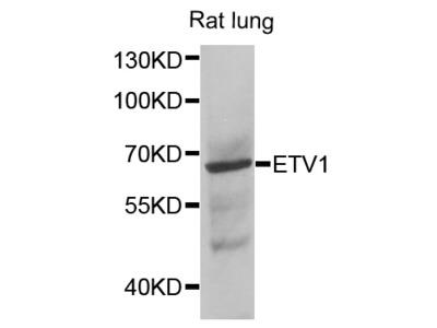 Anti-ETV1 antibody