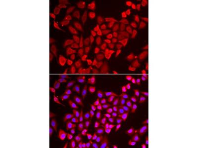 Anti-TNP2 antibody