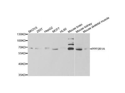 Anti-PPP2R1A antibody