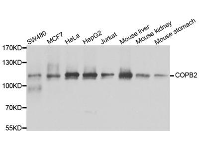 Anti-COPB2 antibody (STJ29116)