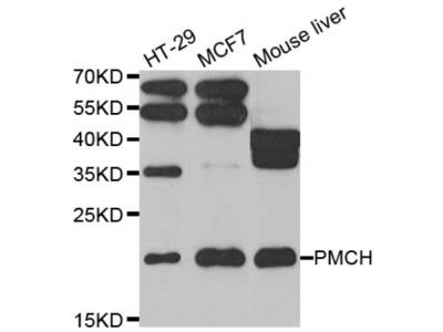 Anti-PMCH antibody