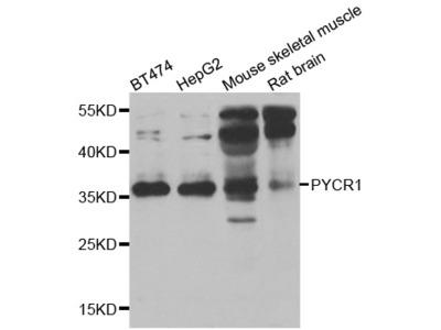 Anti-PYCR1 antibody