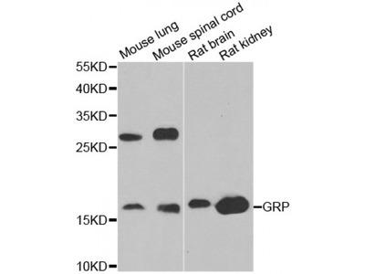 Anti-GRP antibody