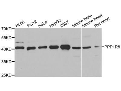 Anti-PPP1R8 antibody (STJ28784)