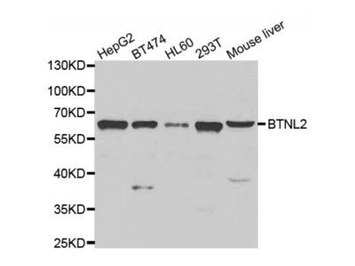 Anti-BTNL2 antibody