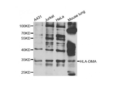 Anti-HLA-DMA antibody