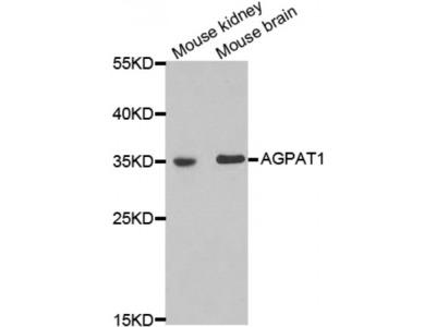 Anti-AGPAT1 antibody