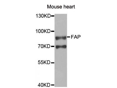 Anti-FAP antibody